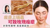 蟎蟲可致玫瑰痤瘡? - 香港健康新聞 | 最新健康消息 | 都市健康快訊 - am730