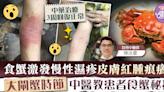 【濕疹飲食】食蟹激發慢性濕疹皮膚紅腫痕癢 大閘蟹時節中醫教患者食蟹秘技 - 香港經濟日報 - TOPick - 健康 - 醫生診症室
