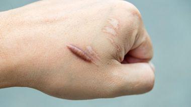 受傷如何避免留疤? 整形外科教「傷口3階段照顧SOP」