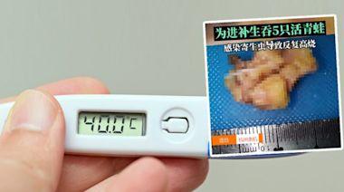 寄生蟲|53歲男誤信偏方生吞5隻青蛙 感染寄生蟲反覆高燒