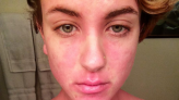 These Powerful Photos Capture What It's Really Like to Have Psoriasis