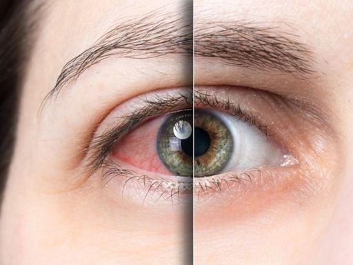 乾眼問題難解?醫:眼藥水恐只治標