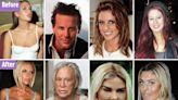 Celebrities who regret cosmetic surgery like 'disfigured' Linda Evangelista