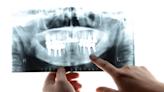 缺牙了!牙醫師:6要點判斷「傳統牙橋」和「植牙」哪個適合自己