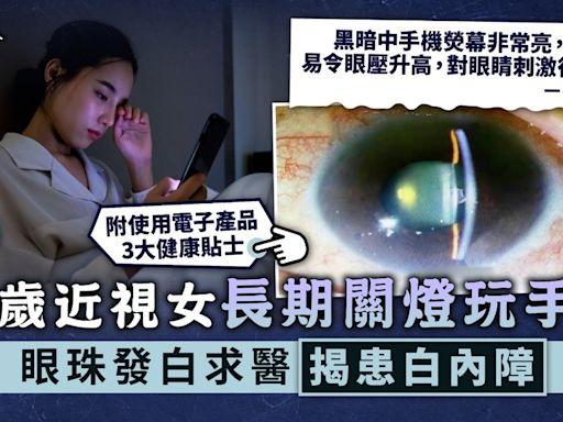 電子用品︳21歲近視女長期關燈玩手機 眼珠發白求醫揭患白內障︳附白內障症狀 - 晴報 - 健康 - 護眼之道