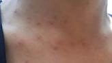 非關水質、疫苗…澎湖怪病初判接觸型皮膚炎 找環境過敏原