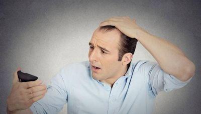 每6個人就有1人脫髮?脫髮這件事,很多國人都陷入了一個嚴重誤區