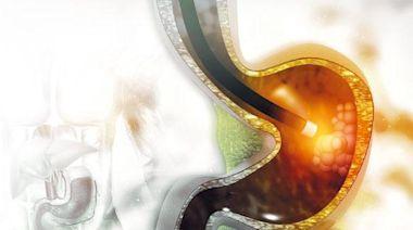 揪出零病徵早期胃癌 高危族 40歲前驗菌 40後照胃鏡 - 20210405 - 副刊