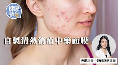 暗瘡︱3大痤瘡類型 女性30歲起易內分泌失調引起痤瘡 中醫教自製清熱消瘡中藥面膜 | 蘋果日報