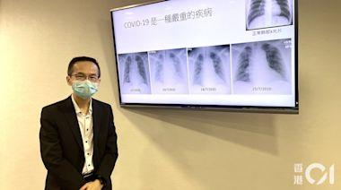 新冠疫苗|醫生:外國青年心肌炎個案病徵溫和 打針休息數天便可