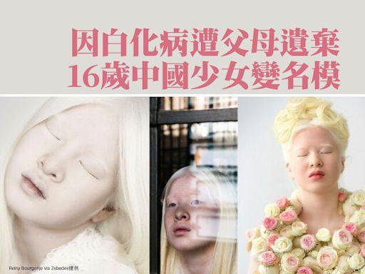 因白化病遭父母遺棄 16歲中國少女變名模