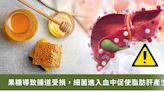 《Nature》子刊:果糖促進糞便菌入血!導致炎症增多、肝臟脂肪變性