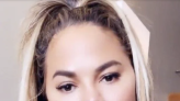 Chrissy Teigen got fat removed from her cheeks. A plastic surgeon explains the procedure.