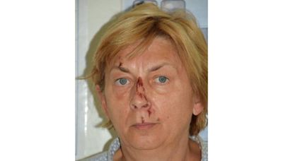 Woman Found on Croatian Island Doesn't Know Her Name or How She Got There, but Speaks English