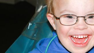 Dental Care for Kids With Down Syndrome
