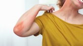Why you're experiencing heat rash (and how to treat it)