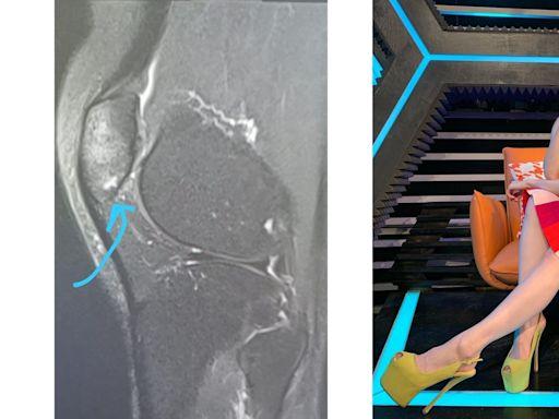 林欣彤放狗意外後照X光驚覺膝頭骨裂 醫生勸休息不要穿高踭鞋