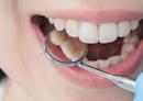 找盡方法想美白牙齒?牙醫師:微黃才是牙齒的健康色!