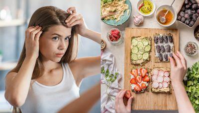 【醫生怎麼辦】稀疏髮量、髮質乾燥都可以靠飲食改善!營養師公開「養髮食補菜單」告別易斷落髮,讓頭髮超茂密!
