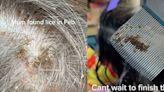 頭蝨集結「成群吸血」女童頭皮9週!翻開頭髮遍布白色蟲卵、驚見蟲蟲亂竄
