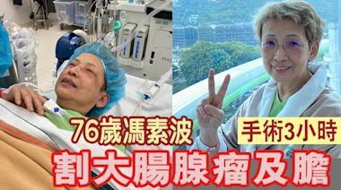 76歲馮素波體檢驚覺腸有腫瘤 憂病變動手術割掉五份一大腸   蘋果日報