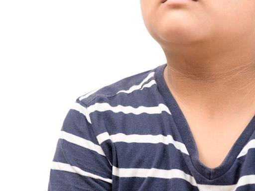 糖世代專題:糖尿病人口破230萬成新國病!「三多」、脖子腋下黑黑是前兆