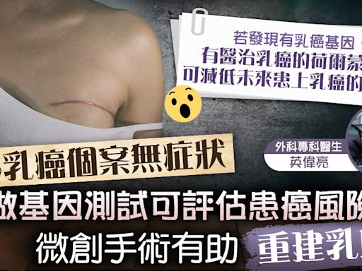 【女性癌症殺手】40%乳癌個案無症狀做測試可評估患癌風險 微創手術有助乳房重建及整形 - 香港經濟日報 - TOPick - 健康 - 醫生診症室