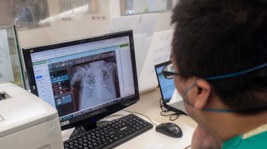新冠患者後遺症除了肺纖維化...胸腔科醫:還可能有「腦霧」現象