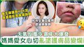 天氣反覆嬰兒濕疹大爆發 亂用護膚產品BB易爛面!醫生分享濕疹皮膚急救法+注意事項   兒童健康   Sundaykiss 香港親子育兒資訊共享平台