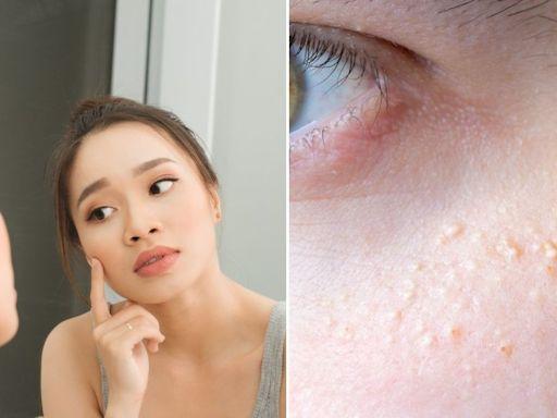 「擦太滋潤眼霜會長肉芽?」真的嗎?還有臉上奇奇怪怪的小顆粒是什麼?專業皮膚科醫師告訴你怎麼辦!