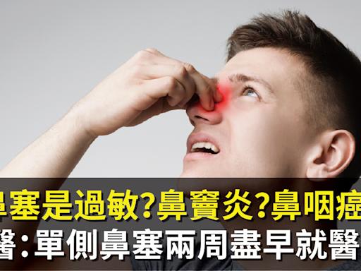 鼻塞是過敏?鼻竇炎?鼻咽癌?醫:單側鼻塞兩周盡早就醫!   健康   NOWnews今日新聞