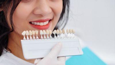 牙齒黃用「美白貼片」有效嗎? 醫揭「背後原理」:小心傷牙齦