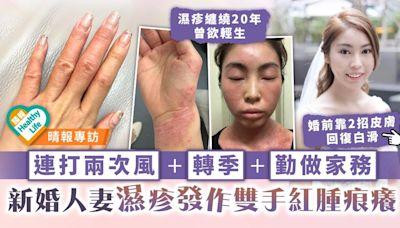 濕疹之苦︳連打兩次風+轉季+勤做家務 新婚人妻濕疹發作雙手紅腫痕癢 - 晴報 - 健康 - 皮膚護理