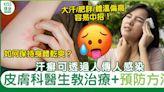 汗癬治療及預防方法 真菌可經人傳人感染 大汗或肥胖等人士較易中招   健康   Sundaykiss 香港親子育兒資訊共享平台