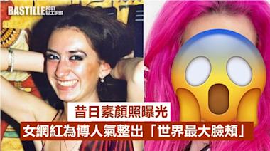 女網紅為博人氣整出「世界最大臉頰」 昔日素顏照曝光 | Plastic