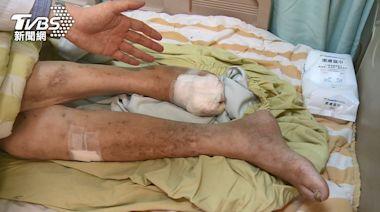 不理會!這六個危險因子 引起「下肢周邊動脈阻塞」醫:恐截肢