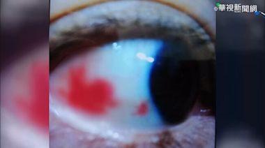 心臟病患者吃保健食品 眼充血.視力退