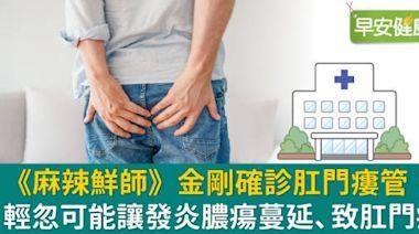 中壯年男性、常久坐、腹瀉須留心!肛門瘻管嚴重恐癌變,平時三大保養不可忘