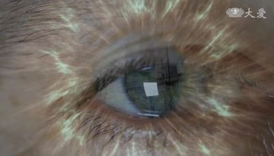 :眼科義診重見光明 命運從此不同