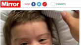3個月萌娃毛髮超濃密爆紅 母曝原因:罕病服藥副作用
