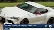 El Cerrito hit-and-run victim has leg amputated