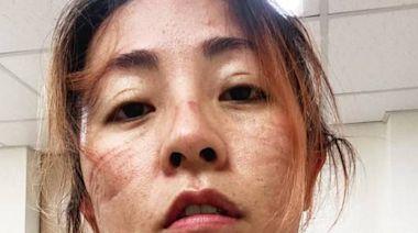 她秀出N95口罩壓痕「只喝2口水、狂憋尿」 網︰宅在家挺醫護