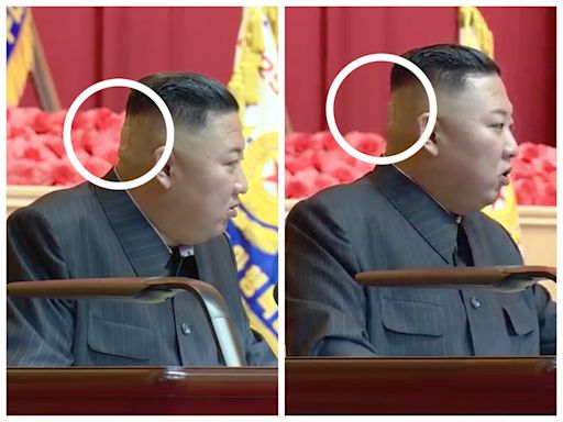 Kim Jong Un was pictured with a strange green mark and a band-aid on the back of his head, fueling further theories about his health