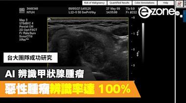 台大團隊成功研究 AI 辨識甲狀腺腫瘤 惡性腫瘤辨識率達 100% - ezone.hk - 科技焦點 - 科技汽車