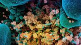 Targeting cellular response to SARS-CoV-2 holds promise as new way to fight infection