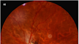 Presumed SARS-CoV-2 Viral Particles in the Human Retina of Patients With COVID-19