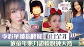 【整容疑雲】37歲李彩華屢被諷「膠樣」 Rain放童年照力證樣貌零加工【多圖】 - 香港經濟日報 - TOPick - 娛樂