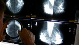 Breast cancer survivor urges women to not delay screenings