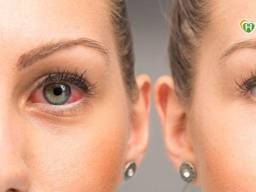 突發性眼睛視線不清 原來是長期淚膜不穩定致乾眼糊矇!