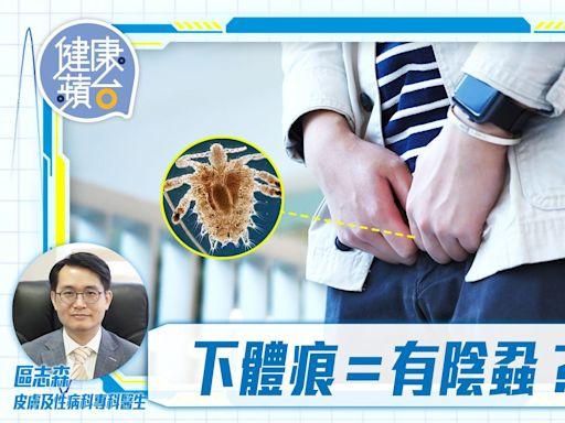 性病|下體痕癢或是陰蝨作怪 醫生提醒傳染途徑唔只性接觸一種 | 蘋果日報